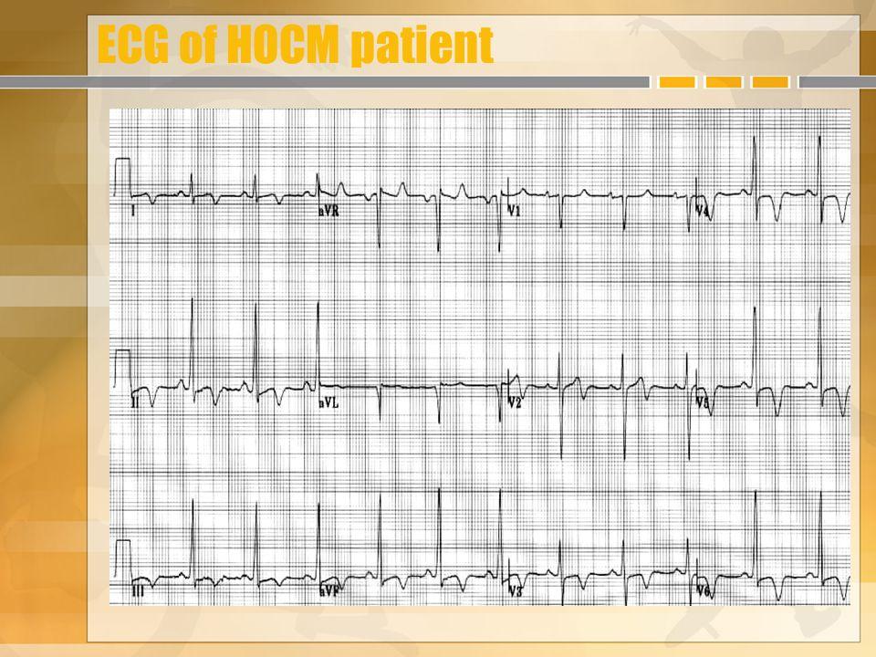 ECG of HOCM patient