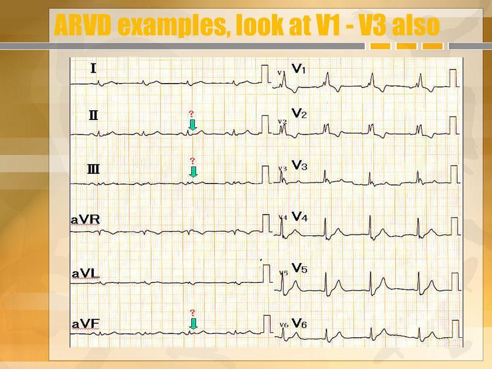 ARVD examples, look at V1 - V3 also