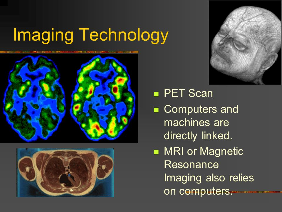 Imaging Technology PET Scan Computers and machines are directly linked.