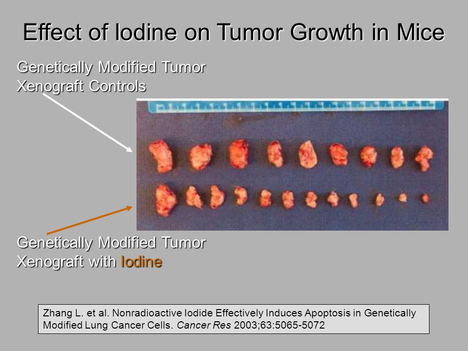 Effect of Iodine on Tumor Growth in Mice Genetically Modified Tumor Xenograft Controls Genetically Modified Tumor Xenograft with Iodine Zhang L. et al