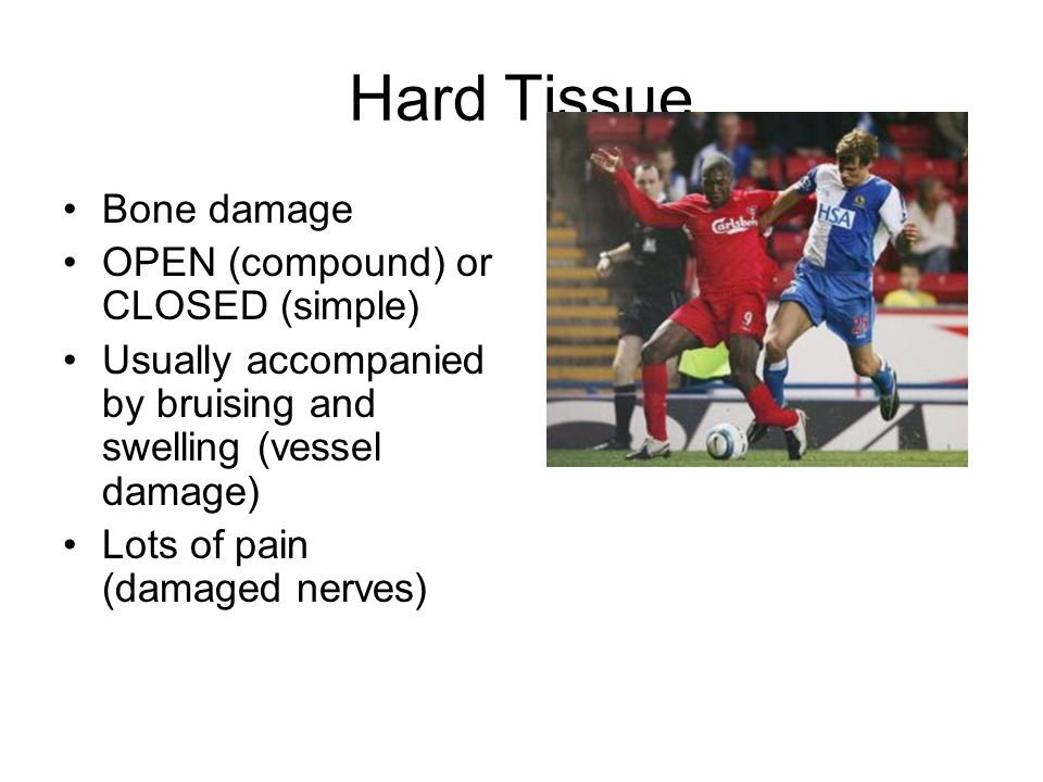 Hard Tissue Bone damage OPEN (compound) or CLOSED (simple) Usually accompanied by bruising and swelling (vessel damage) Lots of pain (damaged nerves)