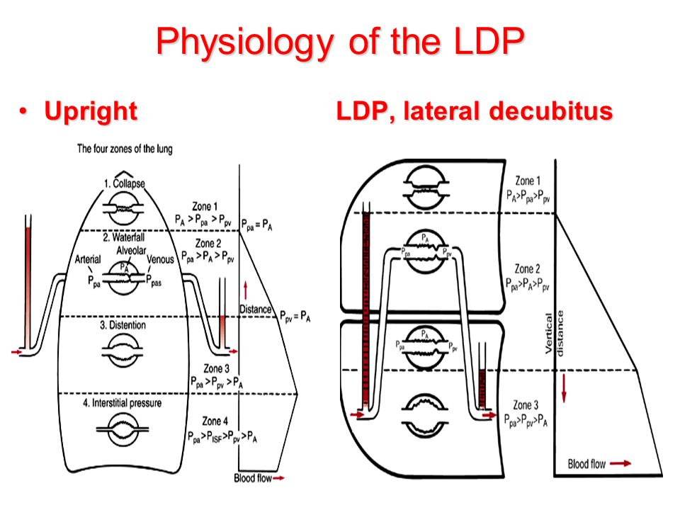 Physiology of the LDP Upright LDP, lateral decubitusUpright LDP, lateral decubitus