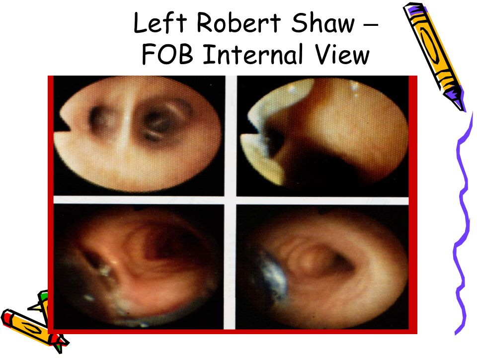 Left Robert Shaw – FOB Internal View