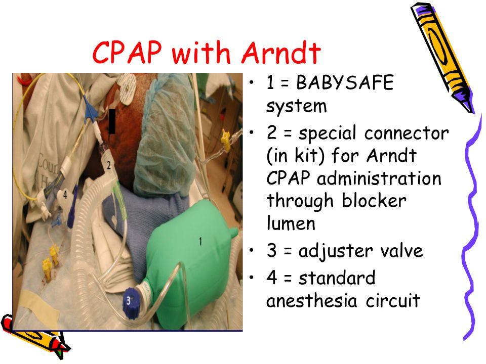 CPAP with Arndt 1 = BABYSAFE system 2 = special connector (in kit) for Arndt CPAP administration through blocker lumen 3 = adjuster valve 4 = standard