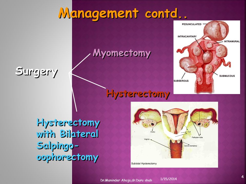 Management contd.. Surgery Myomectomy Hysterectomy with Bilateral Salpingo- oophorectomy Hysterectomy 1/15/2014 Dr.Maninder Ahuja,dr.Duru shah 4