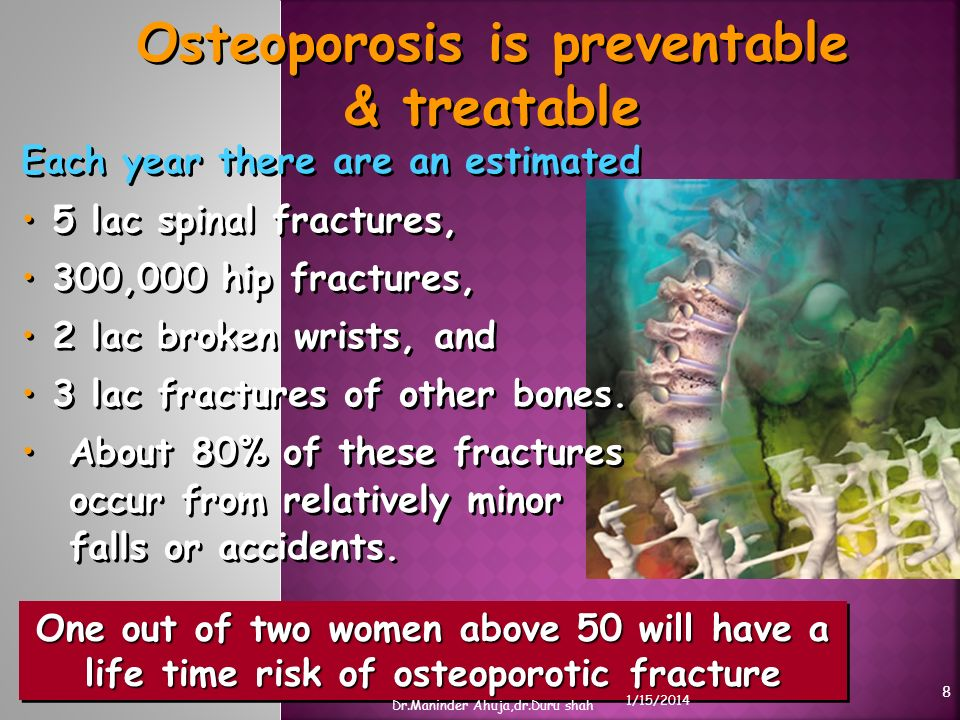 Osteoporosis is preventable & treatable One out of two women above 50 will have a life time risk of osteoporotic fracture Each year there are an estim