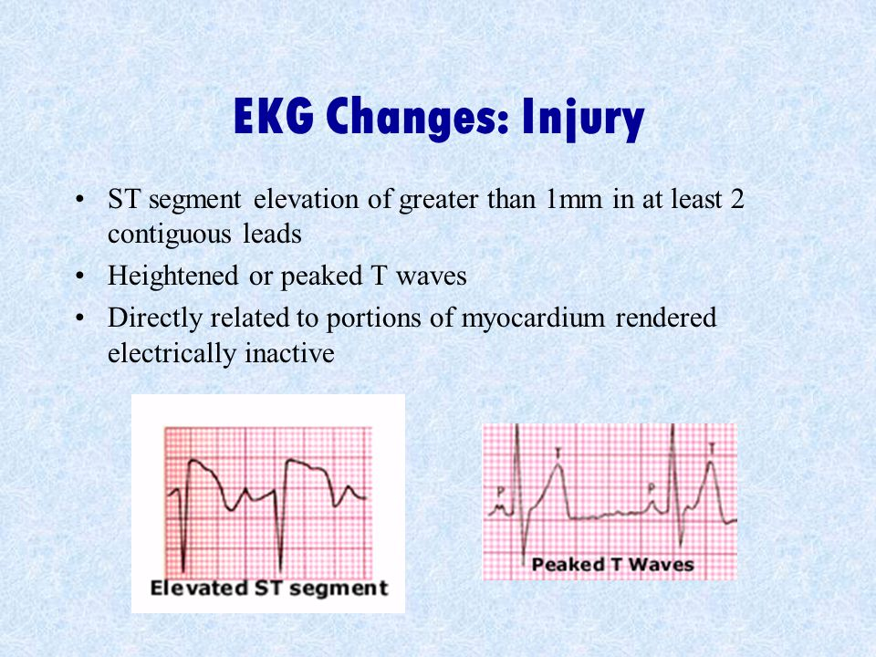 EKG Changes: Injury ST segment elevation of greater than 1mm in at least 2 contiguous leads Heightened or peaked T waves Directly related to portions of myocardium rendered electrically inactive