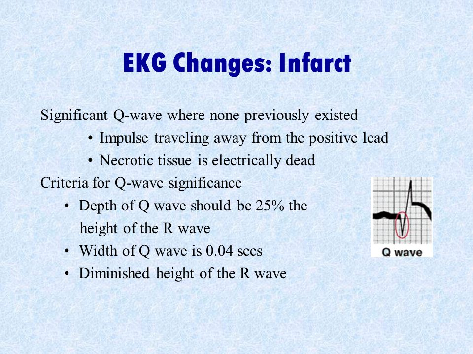 EKG Changes: Infarct Significant Q-wave where none previously existed Impulse traveling away from the positive lead Necrotic tissue is electrically dead Criteria for Q-wave significance Depth of Q wave should be 25% the height of the R wave Width of Q wave is 0.04 secs Diminished height of the R wave
