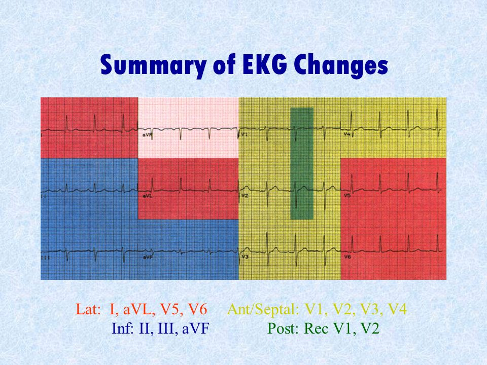 Summary of EKG Changes Lat: I, aVL, V5, V6 Ant/Septal: V1, V2, V3, V4 Inf: II, III, aVF Post: Rec V1, V2