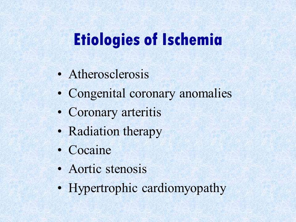 Etiologies of Ischemia Atherosclerosis Congenital coronary anomalies Coronary arteritis Radiation therapy Cocaine Aortic stenosis Hypertrophic cardiom