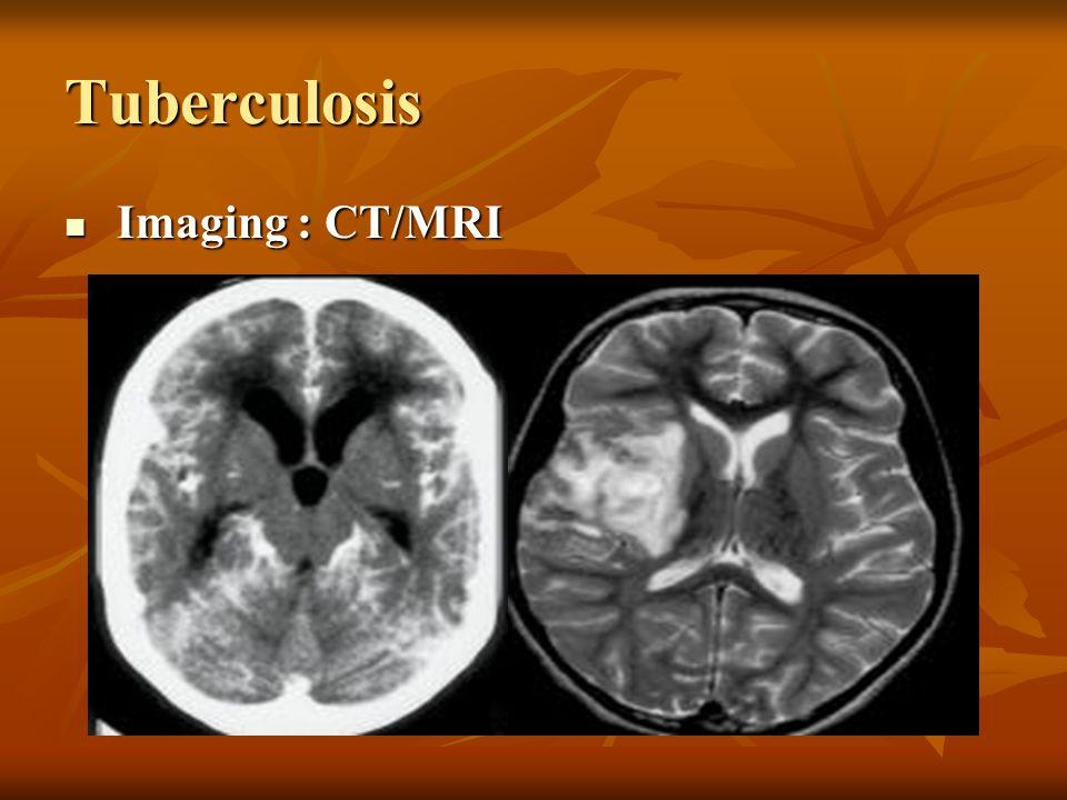 Tuberculosis Imaging : CT/MRI Imaging : CT/MRI