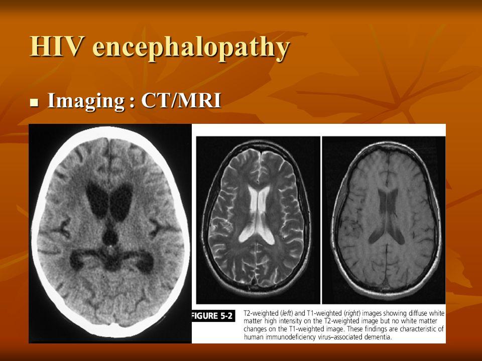 HIV encephalopathy Imaging : CT/MRI Imaging : CT/MRI