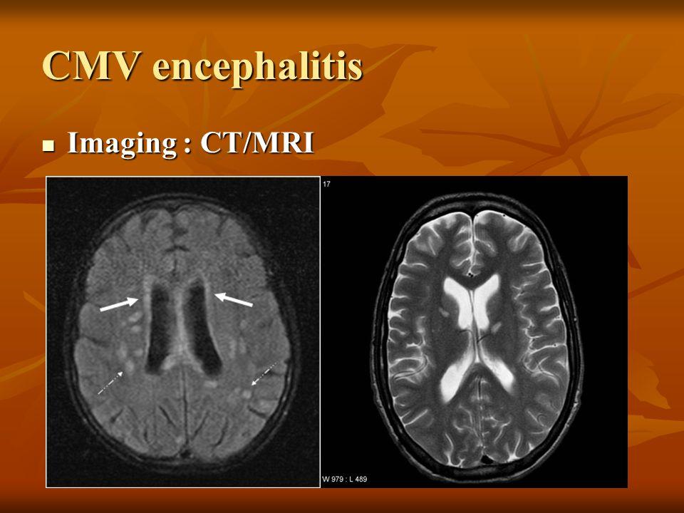 CMV encephalitis Imaging : CT/MRI Imaging : CT/MRI