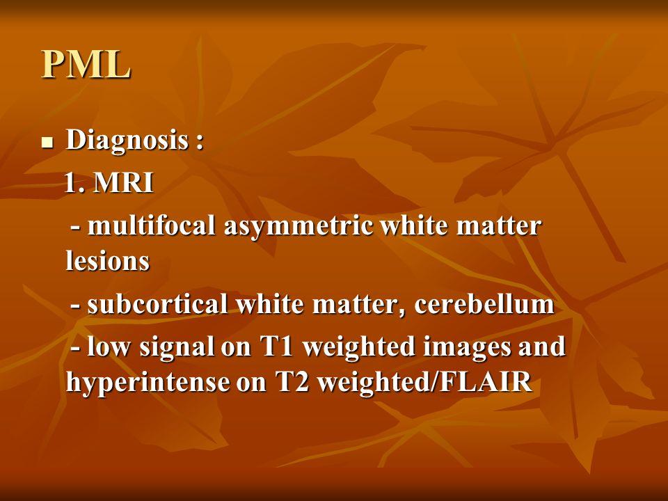 PML Diagnosis : Diagnosis : 1. MRI 1. MRI - multifocal asymmetric white matter lesions - multifocal asymmetric white matter lesions - subcortical whit
