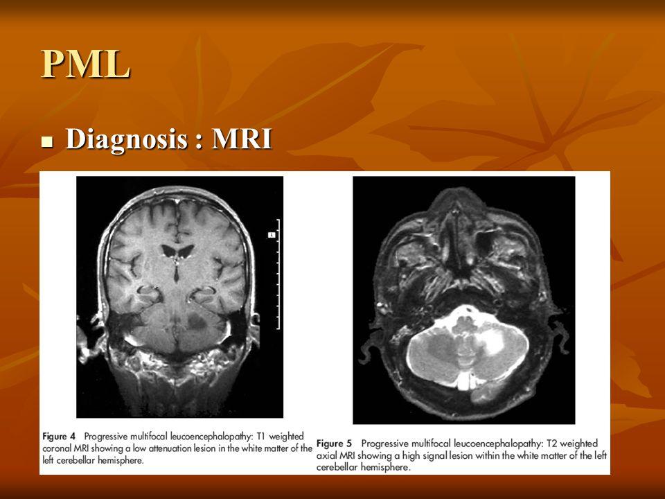 PML Diagnosis : MRI Diagnosis : MRI