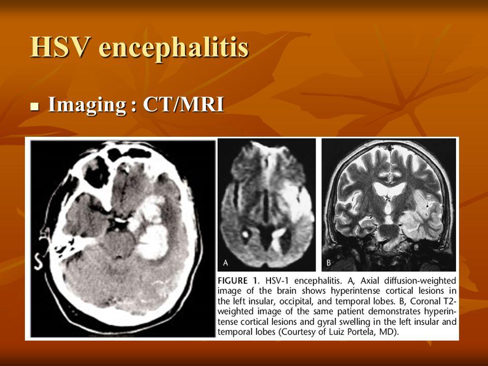 HSV encephalitis Imaging : CT/MRI Imaging : CT/MRI