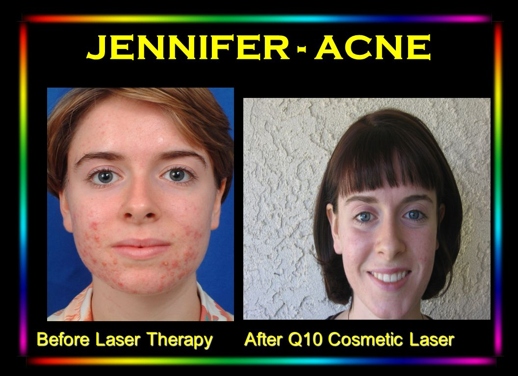 JENNIFER - ACNE Winter 2003 After Q10 Cosmetic Laser Before Laser Therapy