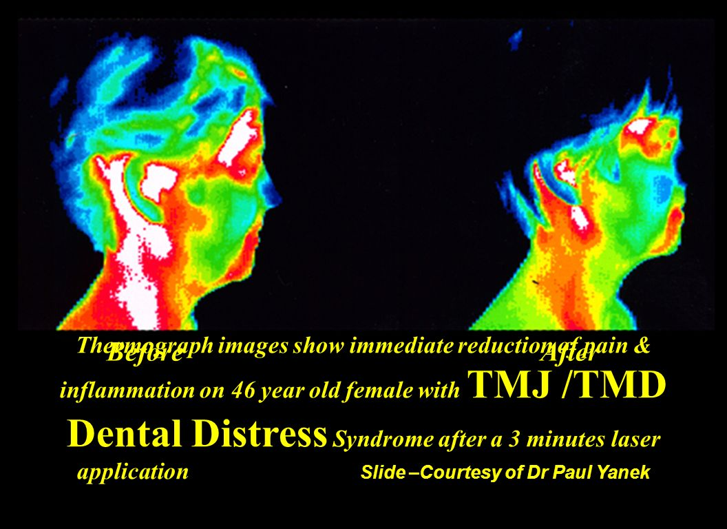 BeforeAfter Thermograph images show immediate reduction of pain & inflammation on 46 year old female with TMJ /TMD Dental Distress Syndrome after a 3