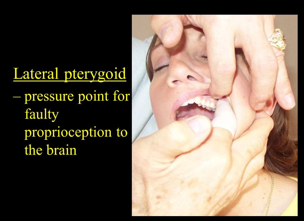 Lateral pterygoid – pressure point for faulty proprioception to the brain