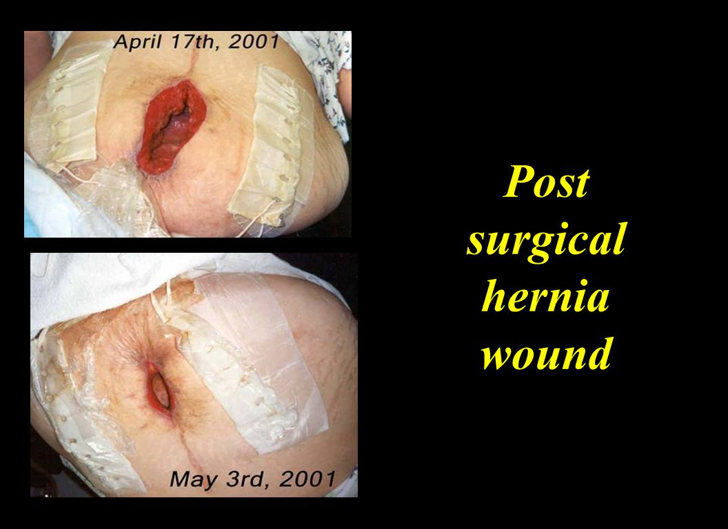 Post surgical hernia wound