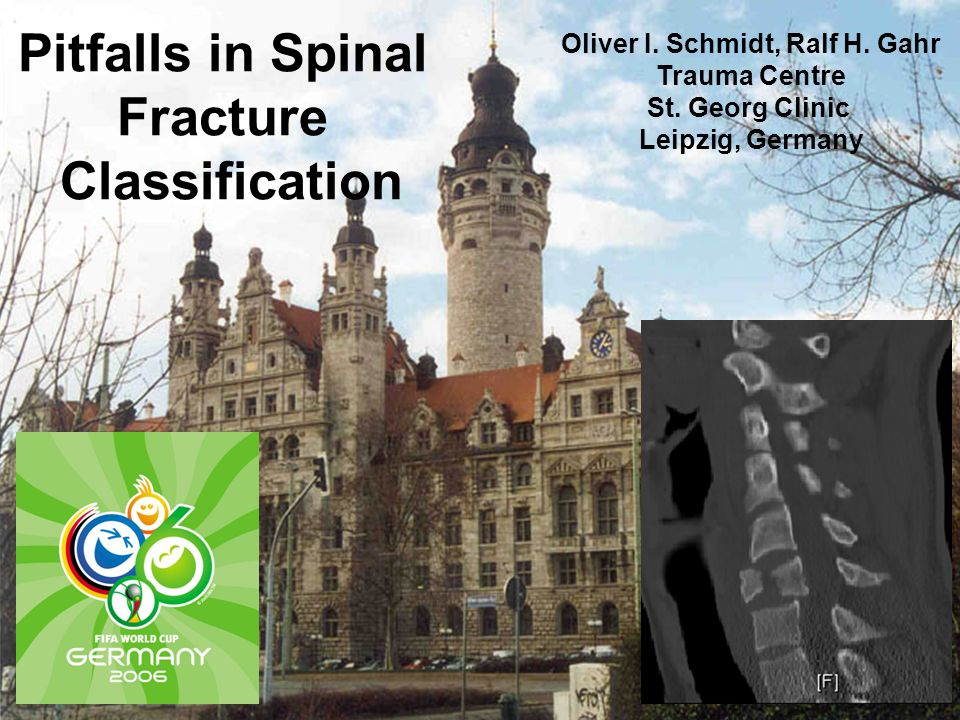 Oliver I. Schmidt, Ralf H. Gahr Trauma Centre St. Georg Clinic Leipzig, Germany Pitfalls in Spinal Fracture Classification
