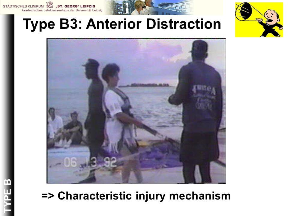 => Characteristic injury mechanism TYPE B Type B3: Anterior Distraction