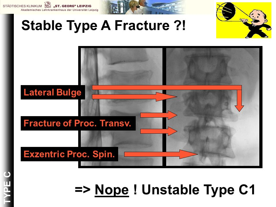 TYPE C Stable Type A Fracture ?! Exzentric Proc. Spin. Fracture of Proc. Transv. Lateral Bulge => Nope ! Unstable Type C1