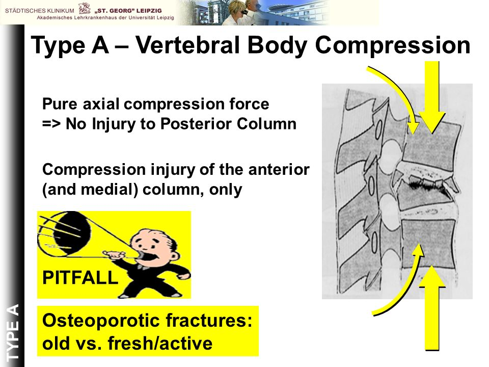 Pure axial compression force => No Injury to Posterior Column Compression injury of the anterior (and medial) column, only Osteoporotic fractures: old