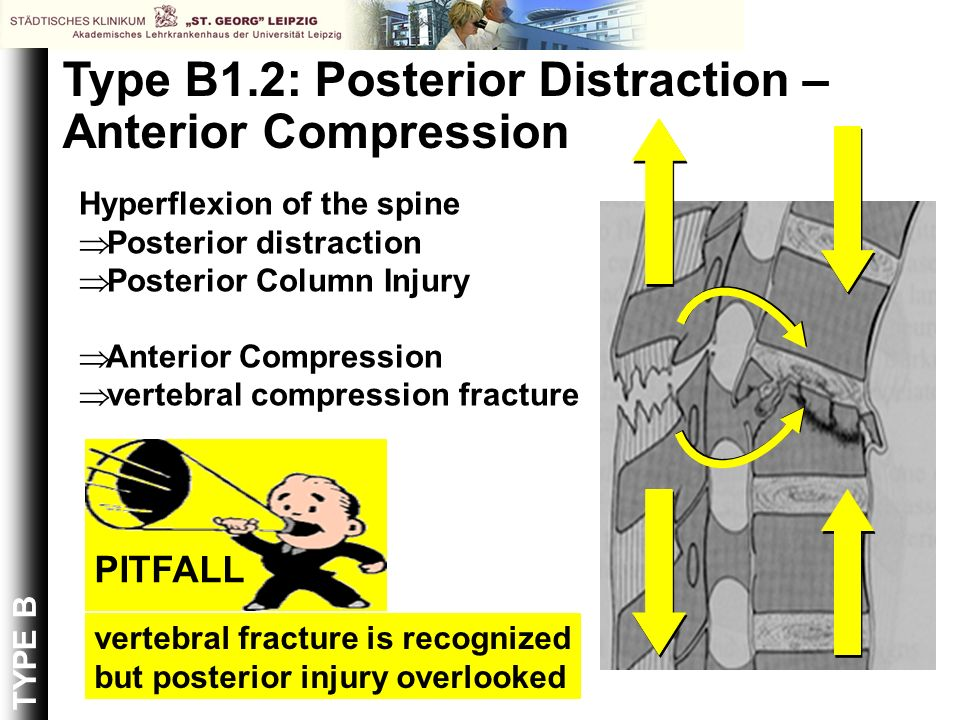 Type B1.2: Posterior Distraction – Anterior Compression Hyperflexion of the spine Posterior distraction Posterior Column Injury Anterior Compression v