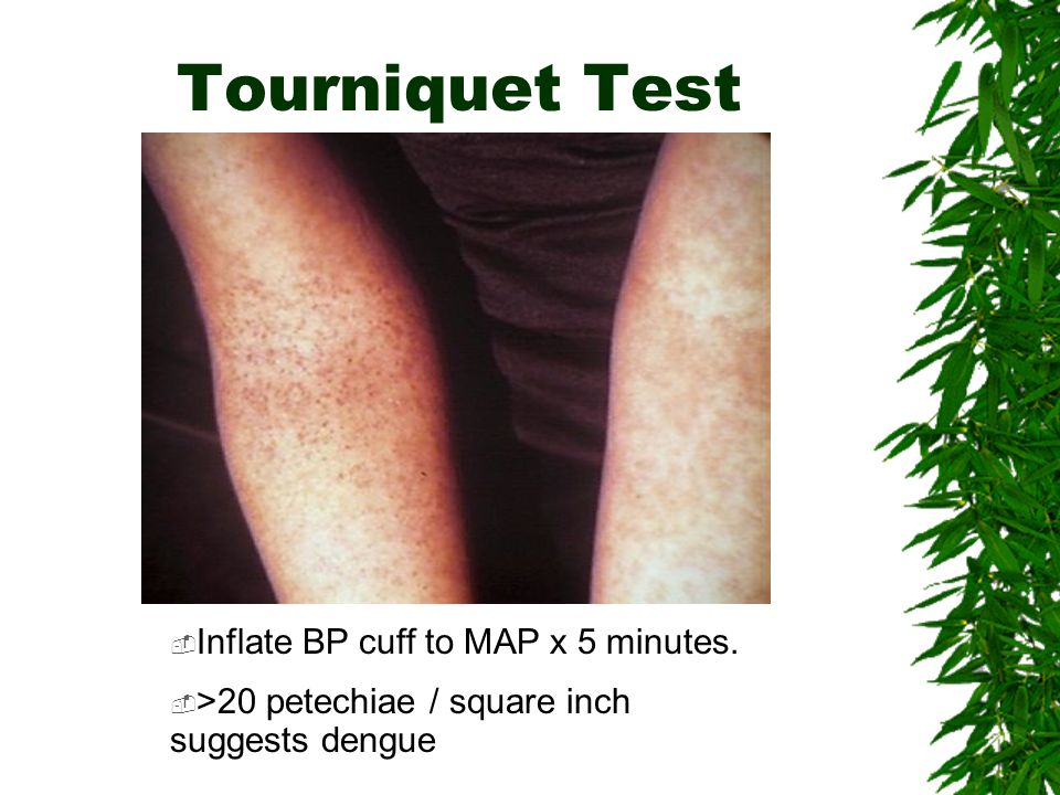 Tourniquet Test Inflate BP cuff to MAP x 5 minutes. >20 petechiae / square inch suggests dengue