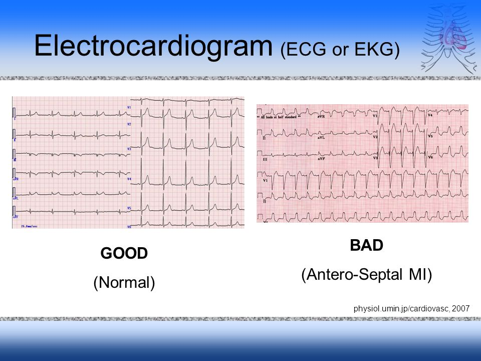 Electrocardiogram (ECG or EKG) GOOD (Normal) BAD (Antero-Septal MI) physiol.umin.jp/cardiovasc, 2007
