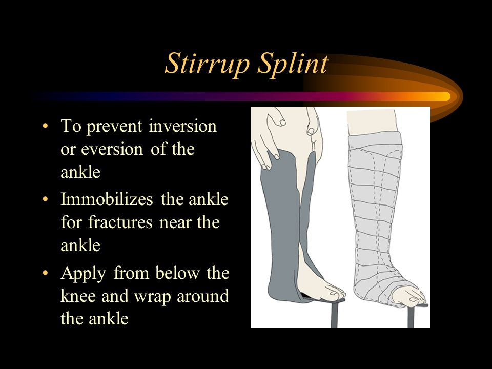 Stirrup Splint To prevent inversion or eversion of the ankle Immobilizes the ankle for fractures near the ankle Apply from below the knee and wrap aro