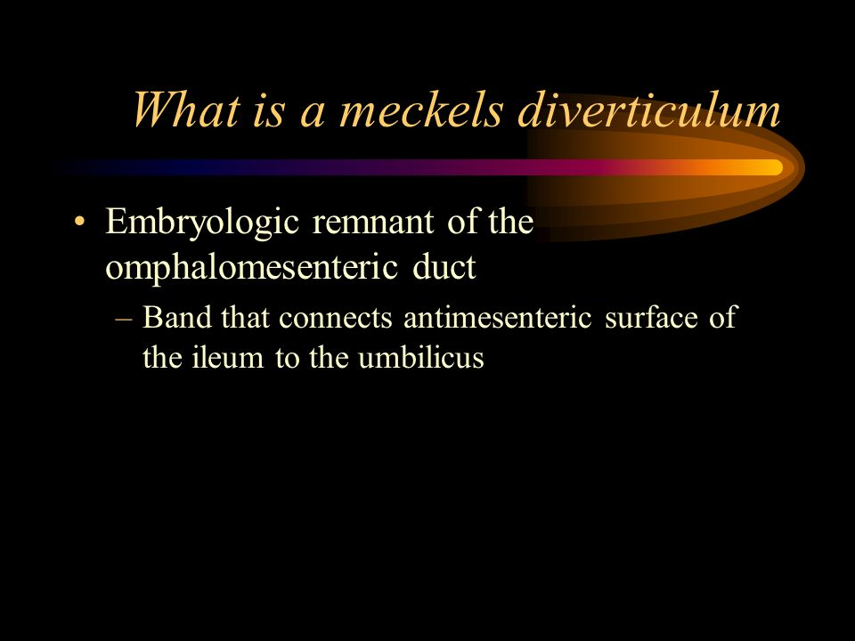 What is a meckels diverticulum Embryologic remnant of the omphalomesenteric duct –Band that connects antimesenteric surface of the ileum to the umbili