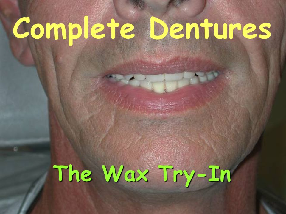 Complete Dentures The Wax Try-In