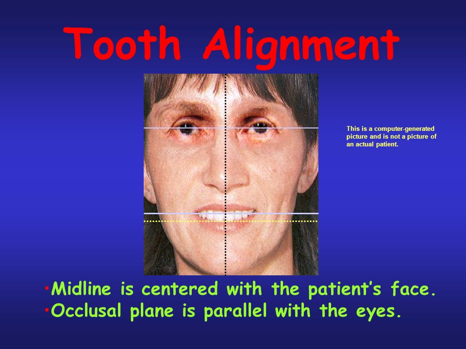 Tooth Alignment Midline is centered with the patients face.