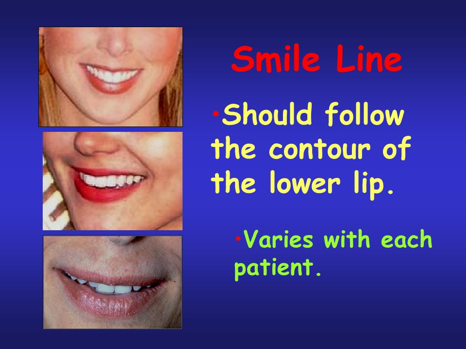 Smile Line Should follow the contour of the lower lip. Varies with each patient.