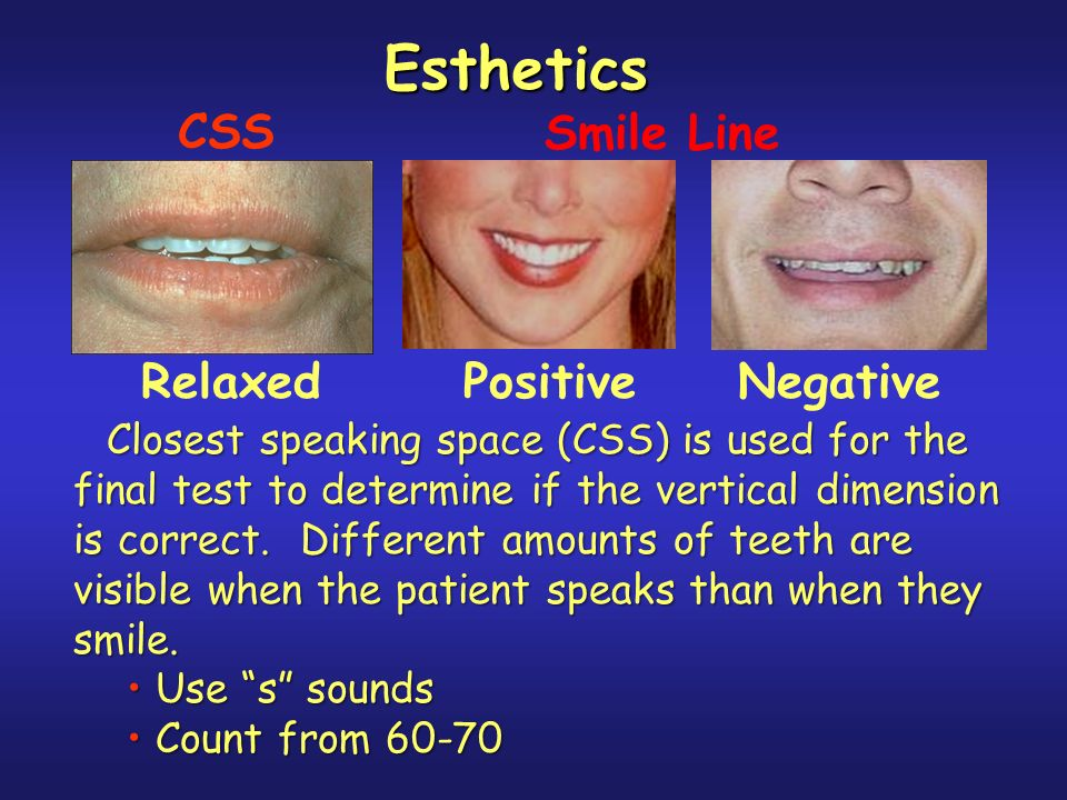 Smile Line Relaxed Positive Negative Esthetics Closest speaking space (CSS) is used for the final test to determine if the vertical dimension is correct.