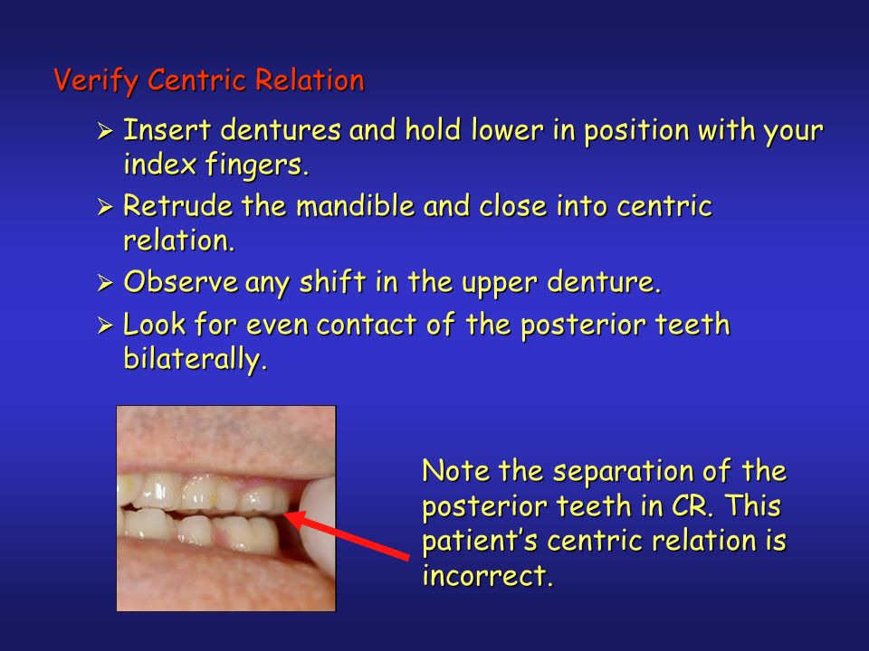 Verify Centric Relation Insert dentures and hold lower in position with your index fingers.