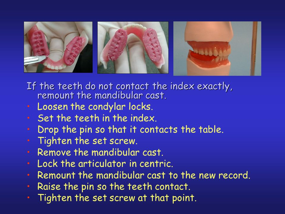 If the teeth do not contact the index exactly, remount the mandibular cast.