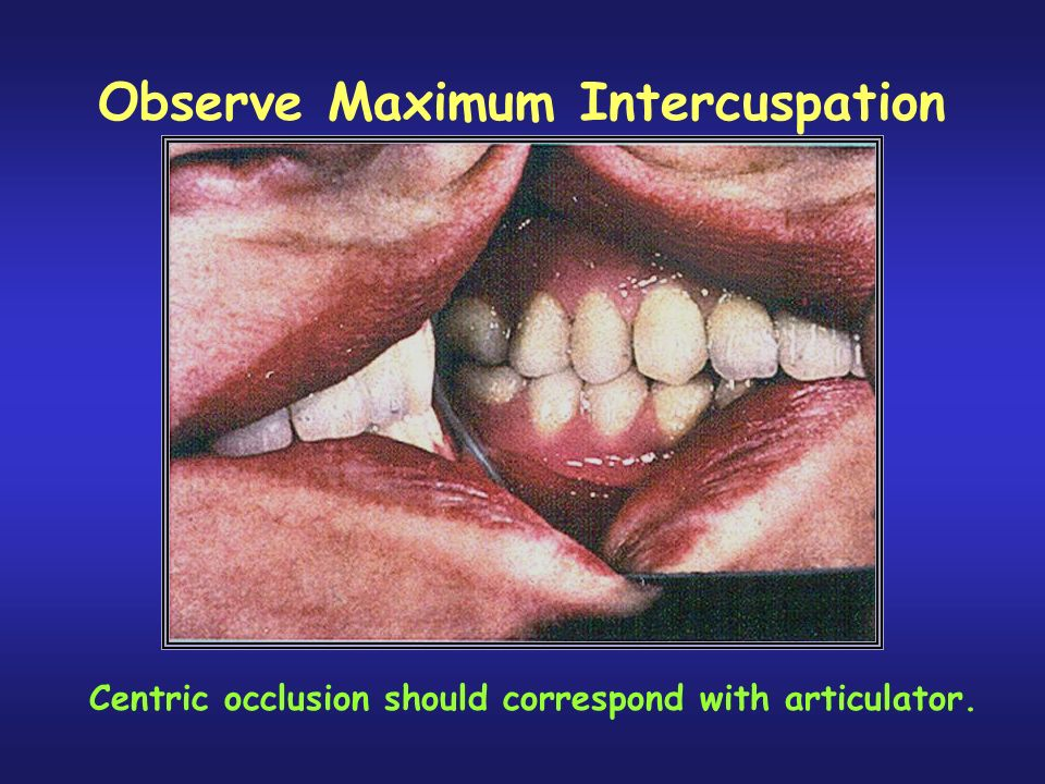 Observe Maximum Intercuspation Centric occlusion should correspond with articulator.