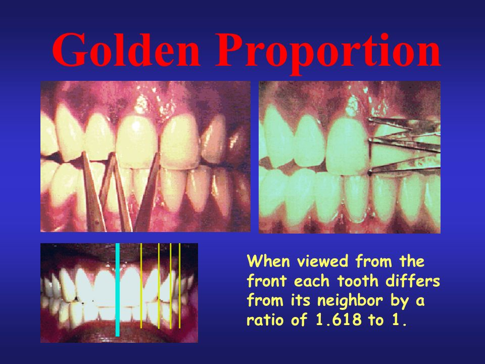 Golden Proportion When viewed from the front each tooth differs from its neighbor by a ratio of 1.618 to 1.