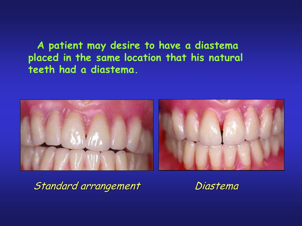 Standard arrangement Diastema A patient may desire to have a diastema placed in the same location that his natural teeth had a diastema.