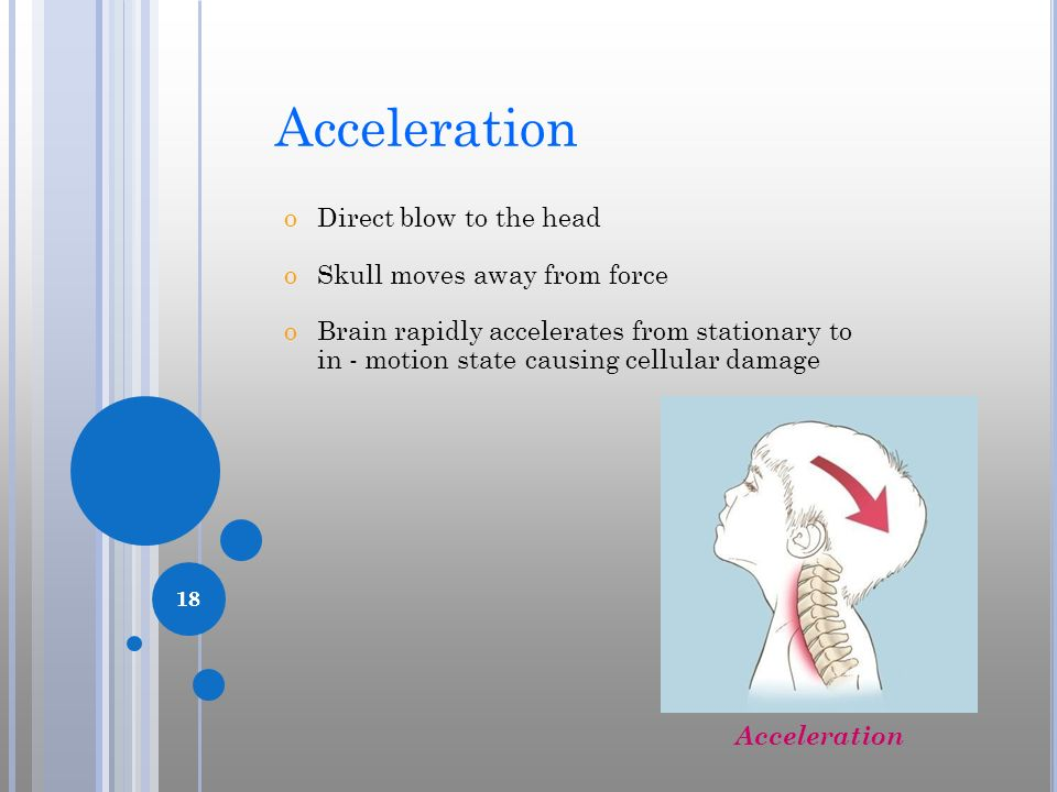 18 Acceleration oDirect blow to the head oSkull moves away from force oBrain rapidly accelerates from stationary to in - motion state causing cellular