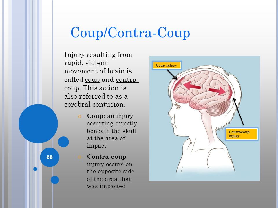 20 Coup/Contra-Coup Injury resulting from rapid, violent movement of brain is called coup and contra- coup. This action is also referred to as a cereb