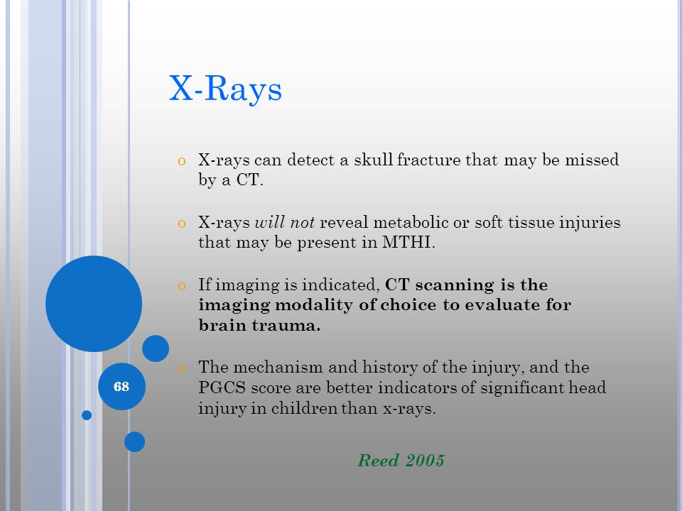 68 X-Rays oX-rays can detect a skull fracture that may be missed by a CT. oX-rays will not reveal metabolic or soft tissue injuries that may be presen