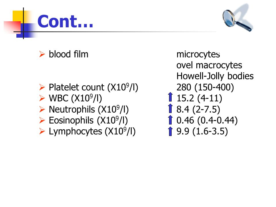 blood film microcytes ovel macrocytes Howell-Jolly bodies Platelet count (X10 9 /l) 280 (150-400) WBC (X10 9 /l)15.2 (4-11) Neutrophils (X10 9 /l) 8.4