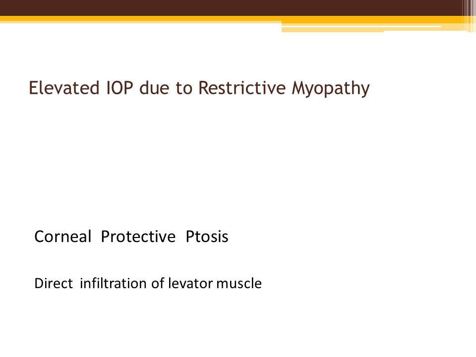 Elevated IOP due to Restrictive Myopathy Corneal Protective Ptosis Direct infiltration of levator muscle