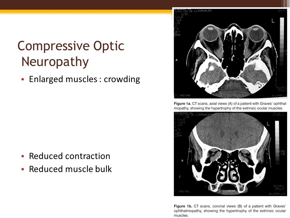Compressive Optic Neuropathy Enlarged muscles : crowding Reduced contraction Reduced muscle bulk