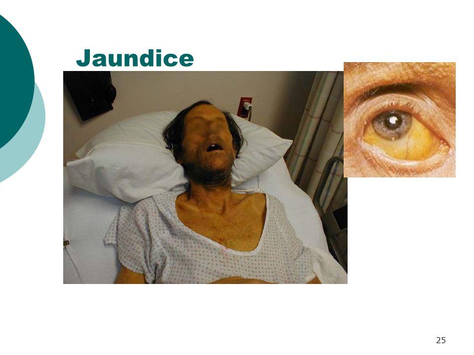 25 Jaundice