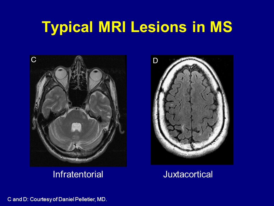 Infratentorial Juxtacortical C and D: Courtesy of Daniel Pelletier, MD. Typical MRI Lesions in MS